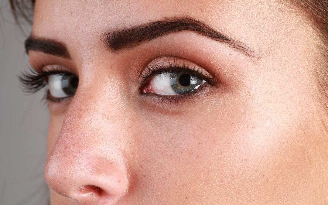 Why do you need a patch test?